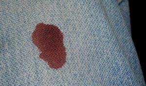Кровь на джинсах