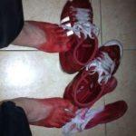 обувь красится при ношении