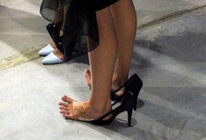 давят туфли