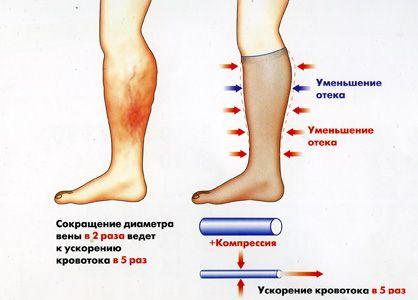 Как работают гетры при варикозе