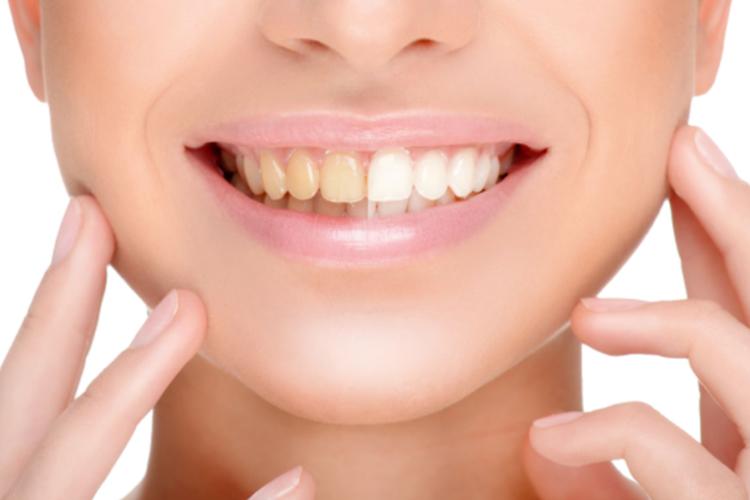 жёлтые зубы