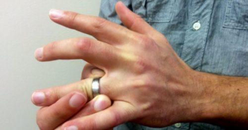 опух палец