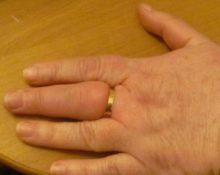 кольцо на отёкшем пальце