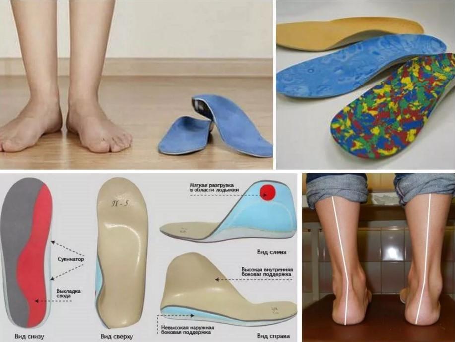ортопедическая обувь 2
