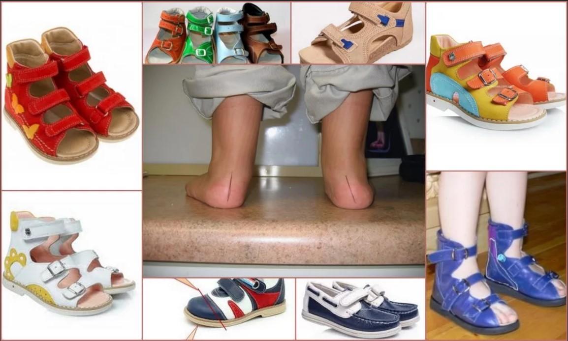 ортопедическая обувь 6