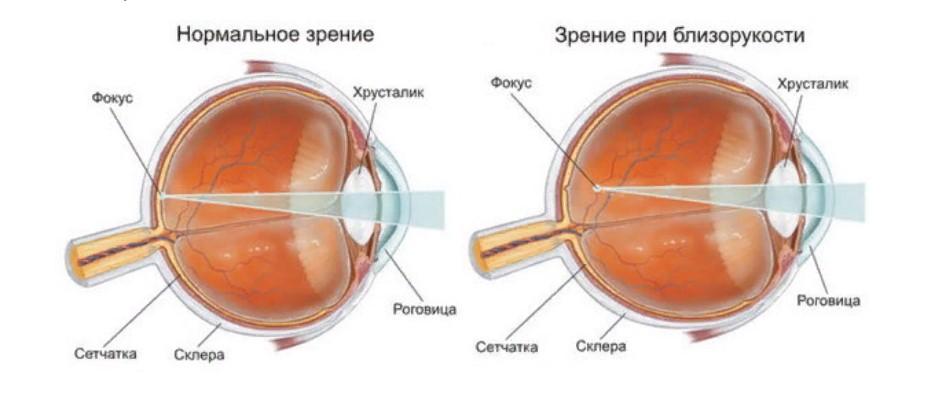 зрение близорукость