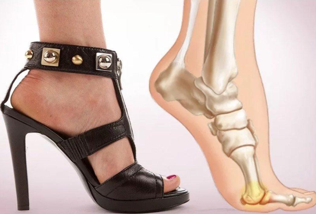 каблуки 2