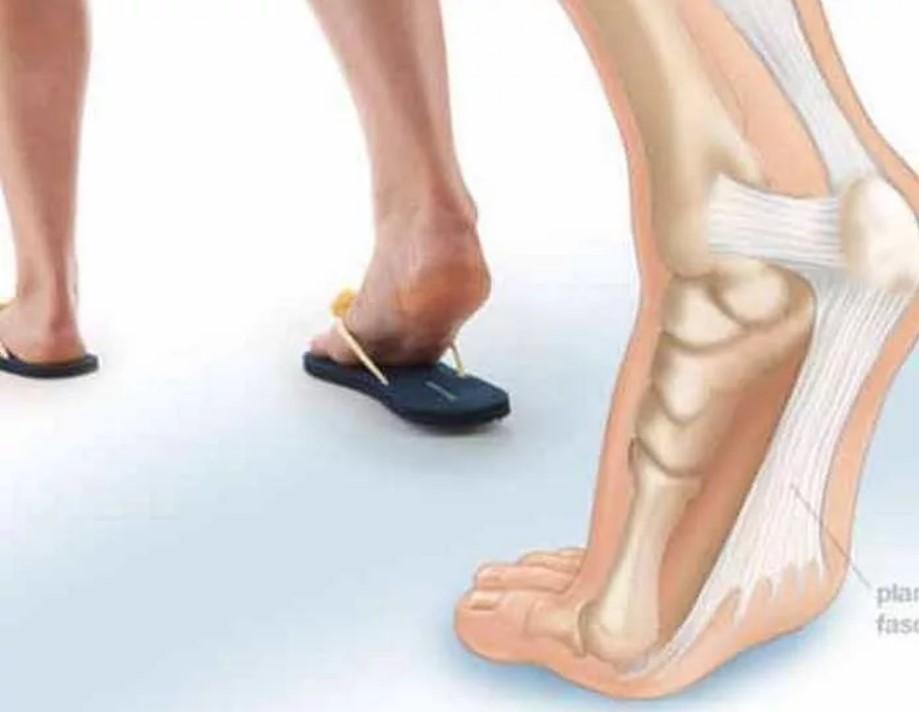 каблуки 3