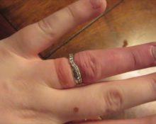 Что делать, если кольцо застряло на пальце