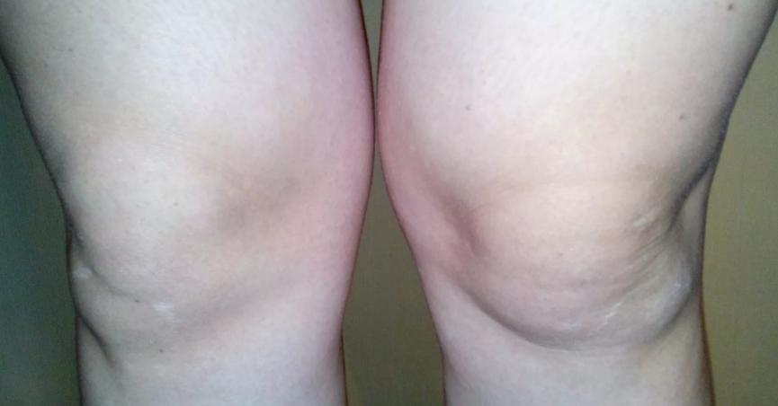 толтые коленки