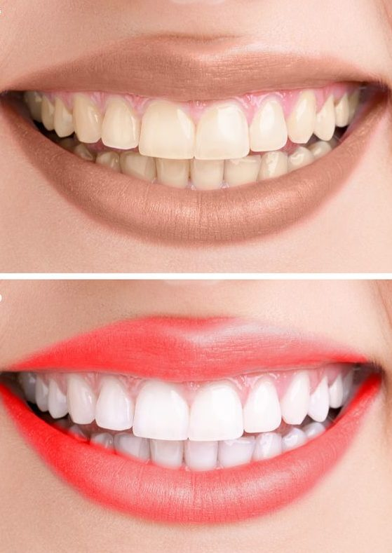 Цвет зубов.